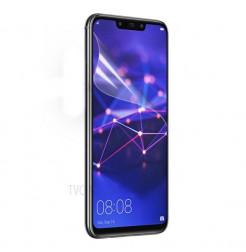 463 - ScreenGuard фолио за екран Huawei Mate 20 lite